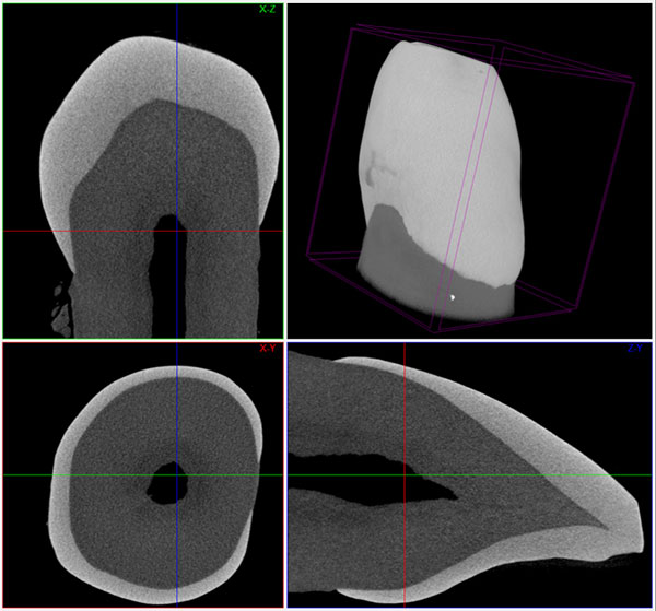 Multiplanar and 3D reconstruction of a crown of a tooth