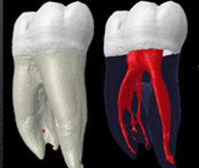 Tooth and root canal